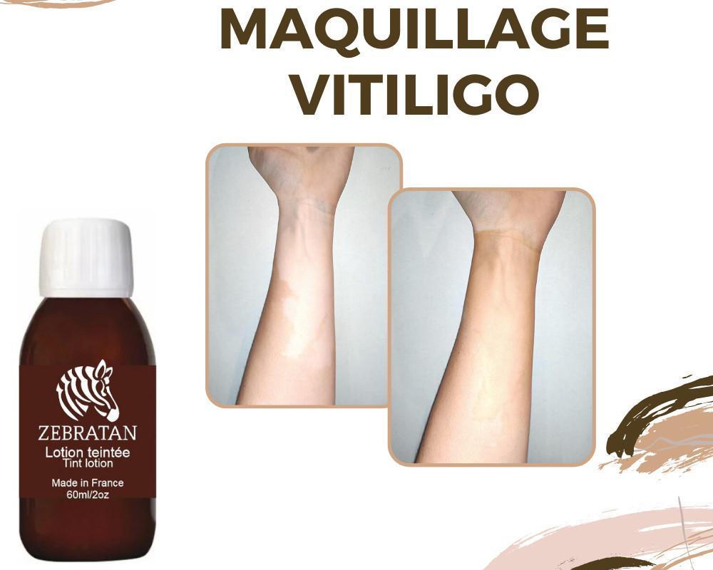 Vitiligo et soleil